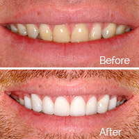 Porcelain Veneers in Santa Clara