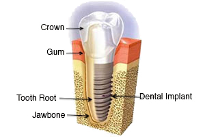 dental implant santa clara