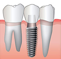 Dental Bridges - Dr. Jayne Hoffman Dentistry